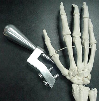 Sistema de fijación intramedular para huesos metacarpianos
