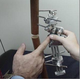 Sistema de fijación para correcciones angulares en niños afectados por parálisis cerebral