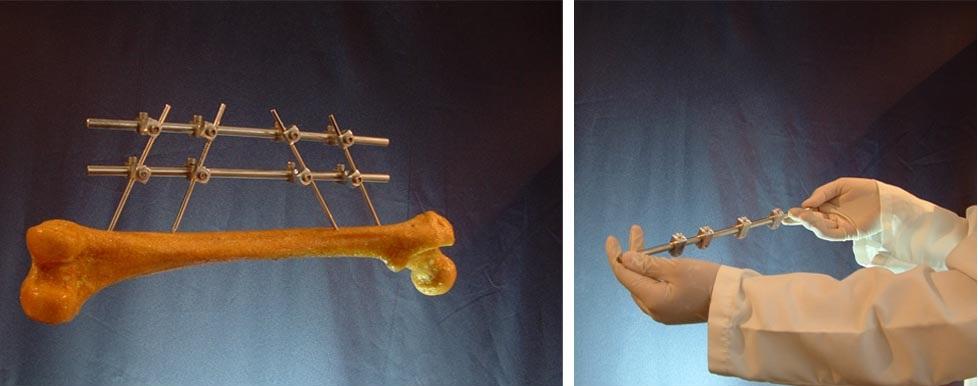 Prototipos de fijadores modelo PROTO