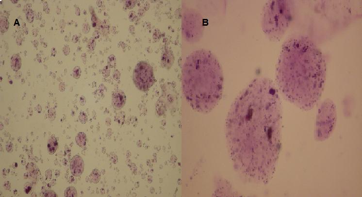 Fig. 1 Microportadores de alginato de sodio y plasma sanguíneo. Tinción con azul de toluidina. a) Aumento 10x, b) Aumento 20x